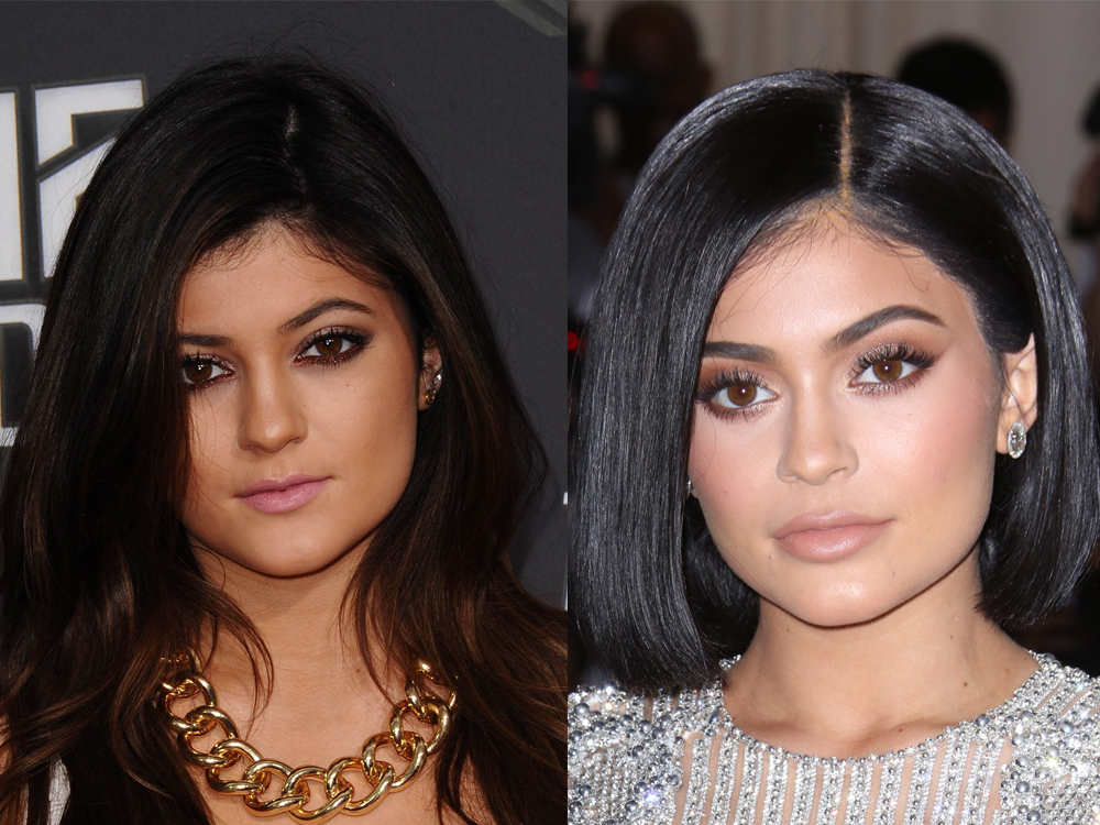best place to get lip fillers
